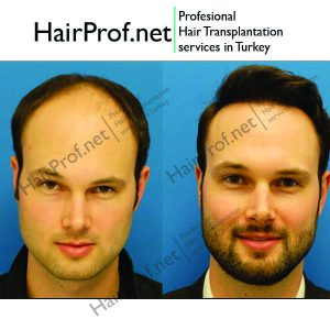 hairprof.net result 14