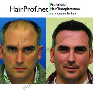 hairprof.net result 15