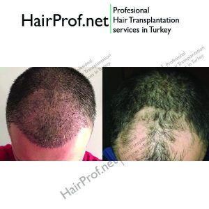 hairprof.net result 16