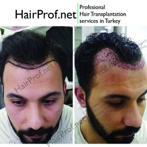 hairprof.net result 3