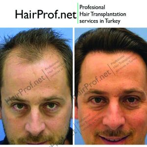 hairprof.net result
